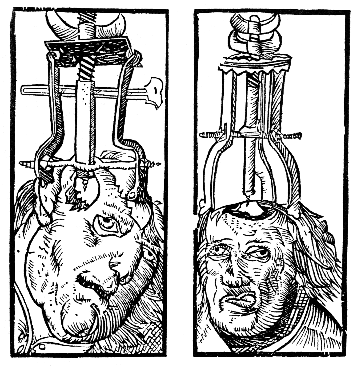 1525 engraving of trepanation